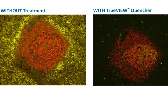 Vector Laboratories Introduces First Effective Reagent for Autofluorescence Quenching