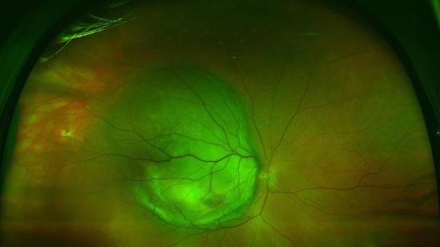 Weak Point in Deadly Eye Melanoma Identified