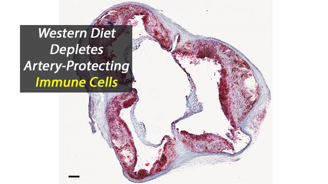 Western Diet Depletes Artery-Protecting Immune Cells
