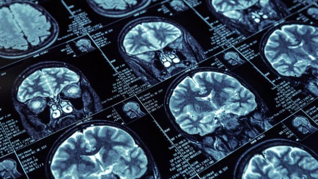 Why Men Are More Likely to Die of Brain Cancer Than Women