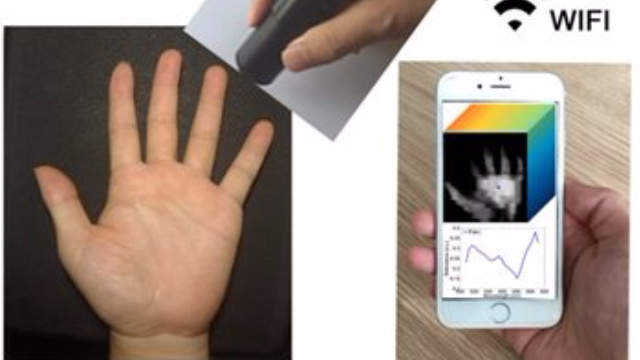 Wireless Handheld Spectrometer Holds Promise for Remote Medical Diagnostics
