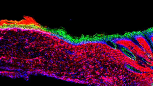 Resident Wound Cells Reprogrammed into Skin Cells