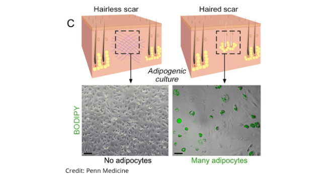 Wound Healing Without Scarring