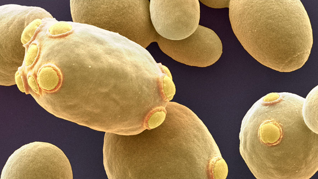 Yeast have Surprising Way of Clearing Infection