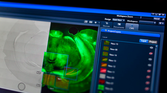 ZEISS Presents New Enhanced Software Technology