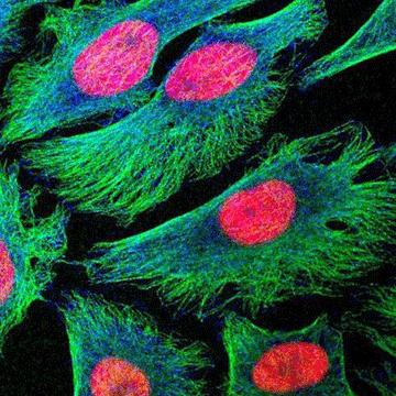 10 Tips for Quantifying Immunohistochemistry Staining