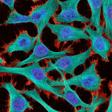 9 Amazing Images from Cancer Research