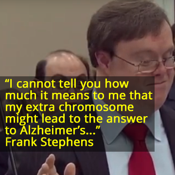 A Powerful Message About Down's Syndrome and Alzheimer's