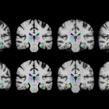 Algorithm Enables Real-time Brain Scan Registering