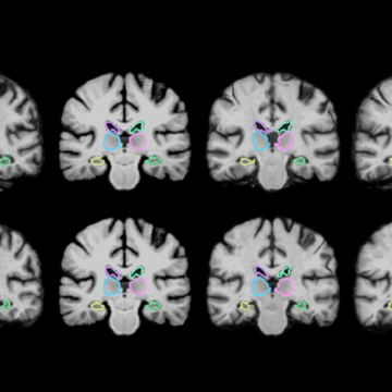 Algorithm Speeds Up Medical Image Analysis 1000 Times