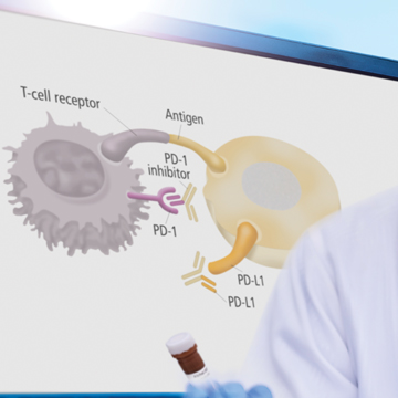 Alpha Technology for Immuno-oncology Assays