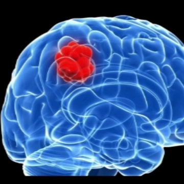 Changing microRNA's Presence in Glioblastoma Cells Could Change the Tumor's Subtype