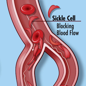 Coalition Calls for Sickle Cell Cannabis Clinical Trial