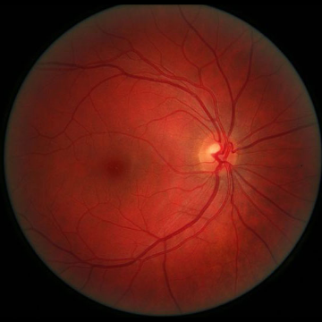 CRISPR Used to Prevent Development of Angiogenesis of the Retina