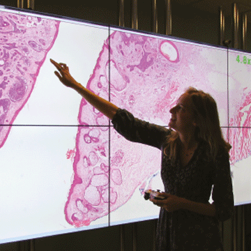 First Fully Digital Pathology Lab in UK Improves Cancer Diagnosis