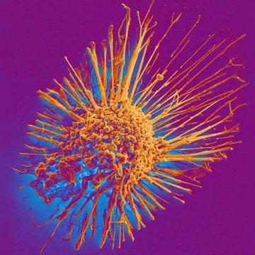 Drug Cocktail Cripples Cancer Cells