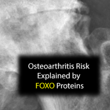 FoxO Proteins Implicated in Arthritis Age Risk