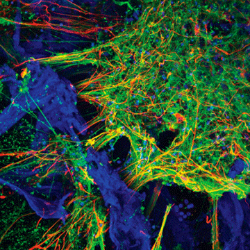 Functioning 3D Human Neural Networks Developed From Stem Cells