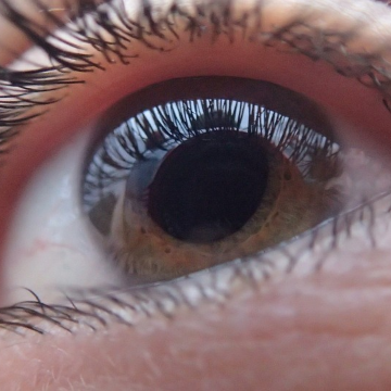 Gene Regulator May Contribute to Protein Pileup in Exfoliation Glaucoma