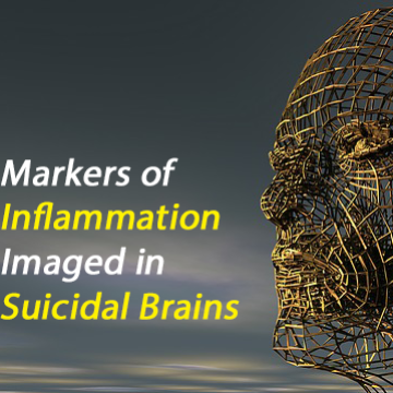 Inflammatory Markers Upregulated in Majorly Depressed Human Brains