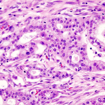 Key Factor for Pancreatic Cancer Aggressiveness Identified