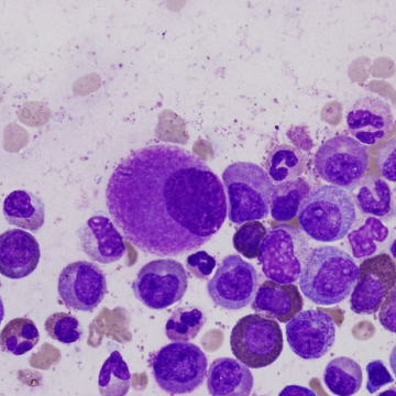 Mapping Genome-wide DNA Damage in Leukemias