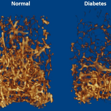 Metabolomic Analysis Reveals Underlying Cause of Weaker Bones in Diabetic Mice