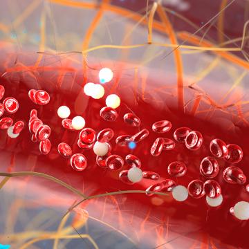 Microfluidic Device Detects Circulating Plasma Cells