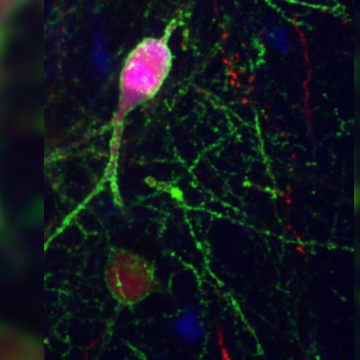 Molecular Mechanism That Enable Neuronal Connections to Change With Development Discovered