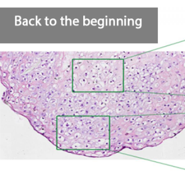 New Process to Differentiate Stem Cells into Nucleus Pulposus-Like Cells
