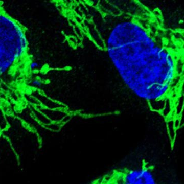 Pancreatic Cancer: Mechanism of treatment-resistance discovered
