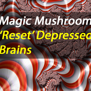 Psilocybin for Treatment-Resistant Depression