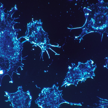 Research Team Discovers Compound that Stops Cancer From Spreading
