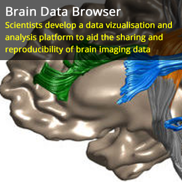 Researchers Democratize Neuroscience by Making it Easier to Share Brain Imaging Data
