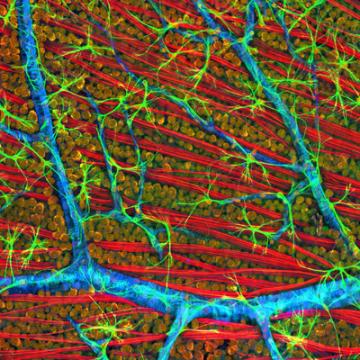 Reversing Gene Damage to Treat Blindness