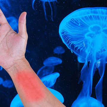 Should You Pee on Jellyfish Stings?