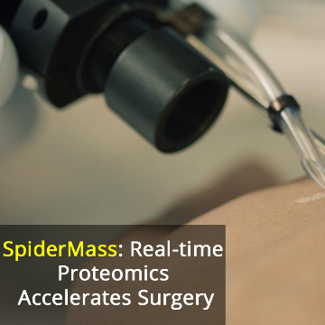SpiderMass Device to Speed Up Cancer Surgery