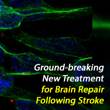 Stem-Cell Exosome Treatment Repairs Brain Damage Following Stroke
