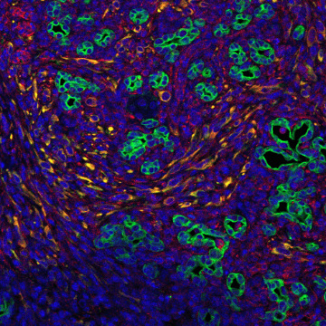 Supportive Cell Signals Encourage Pancreatic Tumor Growth