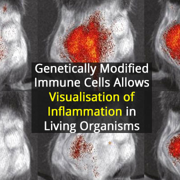 Understanding Inflammation From the Inside Out
