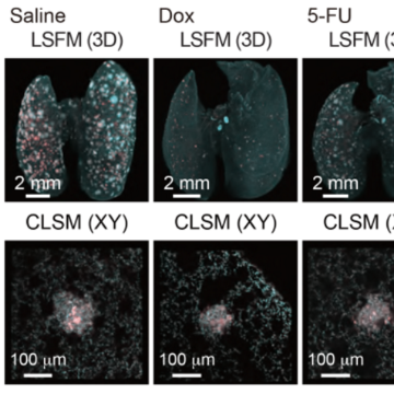 Visualizing Whole-body Cancer Metastasis at the Single-cell Level